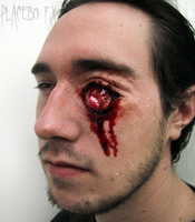 Eye Trauma by PlaceboFX