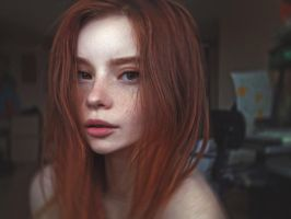 Freckles by illegalimage