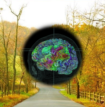 COS BrainViewer Visualizer by Eclectic-Tech