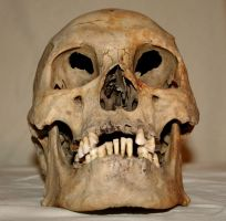 Skull Stock Photo 03 by Aleuranthropy