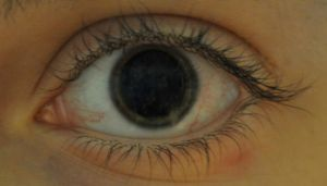 Dilated Pupil by ladybug95