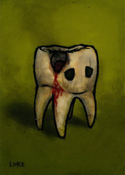 Tooth Series - Cavity by lukechueh