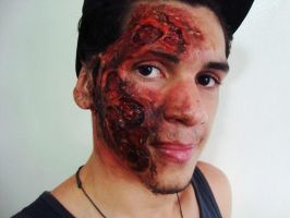 Burnt face. by fontenelefx