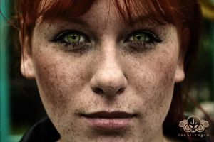 Freckles by rosarioagro