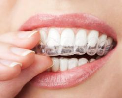 Invisalign Braces in Dallas by stewarthefton