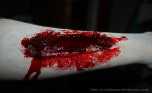 bloody wound by MadebyMTE