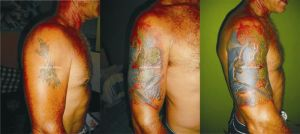Cover Up Tattoo 1 by rudisarttattoo