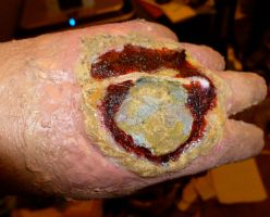 Infected Burn Wound by StageArtisan